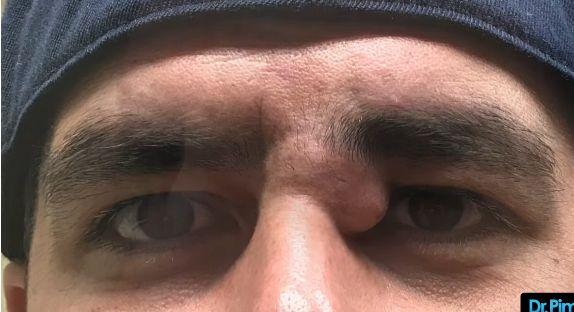 Umflatura la ochi