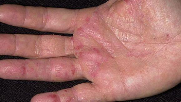 Primul semn de cancer apare pe maini! Nu il ignora! Uite la ce trebuie sa fii atent