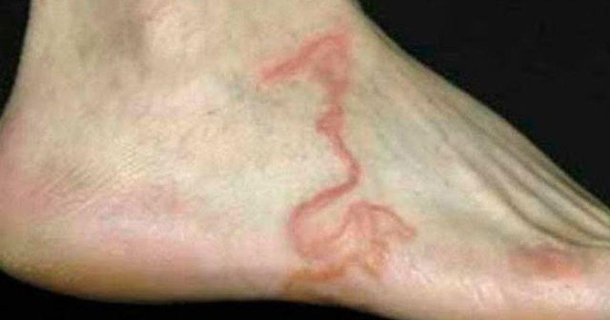 varicoză pe picior doare prost varicoze imagini membre inferioare