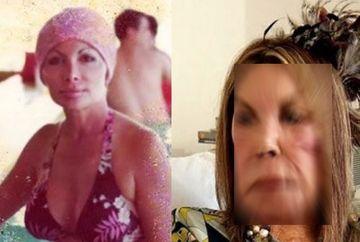 HORROR. Dependenta de operatii estetice a transformat-o intr-un monstru! Nici nu se poate privi in oglinda