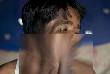 Imagini socante! DESFIGURAT de o tumoare gigant, un tanar a primit o noua sansa la viata