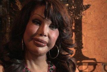 Transexual obsedat de operatii estetice la un pas de ramane PARALIZAT dupa ce i s-a scurs siliconul din fese