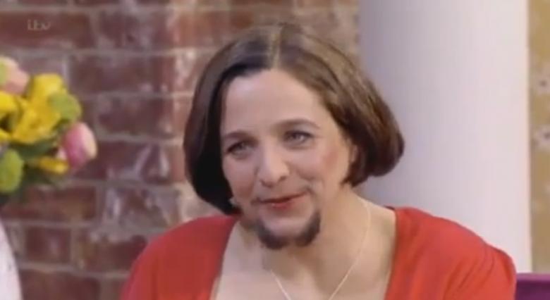 Femeia cu barba nu s-a mai epilat deloc in ultimii 5 ani si se simte foarte sexy! Vezi imaginile astea daca ai curaj