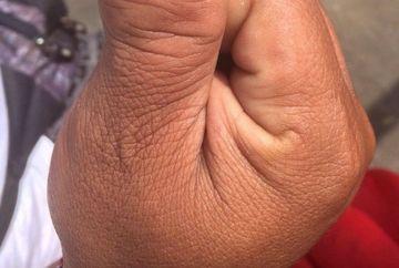Asa ceva nu ai vazut NICIODATA! Uite cum arata degetul mare cu doua unghii