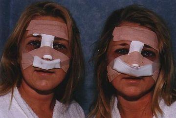 Ele sunt gemenele care au cheltuit 70 000 lire sterline ca sa arate la fel. Vezi rezultatul final!