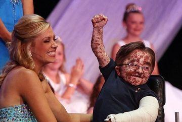Sufera de o boala rara care ii lasa semne pe tot corpul, dar asta nu l-a impiedicat sa participe la concursuri de frumusete