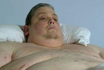 IMAGINE SOC: Cum arata radiografia unui om de 450 de kilograme! Iata CE ASCUND corpurile oamenilor OBEZI