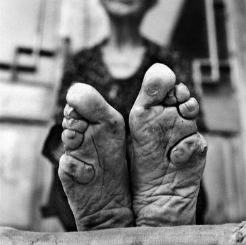 De ce au ajuns unele femei din China sa aiba picioarele ASA! PRACTICA SOCANTA care le-a DISTRUS viata