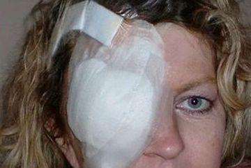 """Porti ochelari de soare? AI GRIJA! Nu o sa crezi ce a patit aceasta femeie: """"Sunt DISTRUSA pe viata"""""""