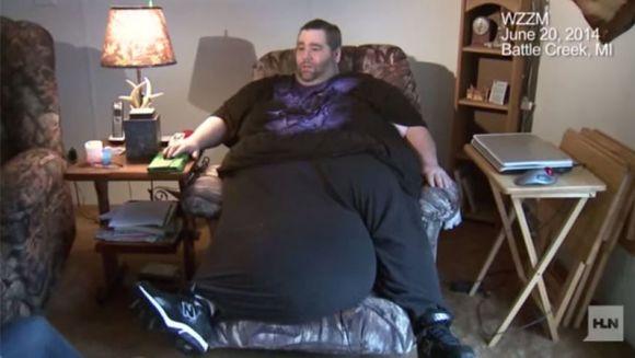 SOCANT. Barbatul cu testicule de 50 DE KILOGRAME a fost operat. Va putea face sex din nou, dupa SAPTE ANI, cu sotia sa