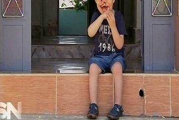 SOCANT. El este baietelul FARA FATA. O boala rara a facut sa se nasca fara chip!
