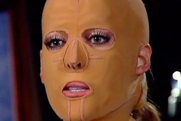 Si-a facut 30 de operatii estetice si a purtat o masca timp de 2 ani! Nu o sa crezi cum arata CHIPUL ei acum