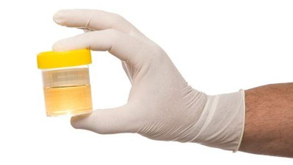 A dus urina sotiei la analize ca sa nu afle sefii ca a baut. Medicii s-au CRUCIT cand au vazut rezultatul!