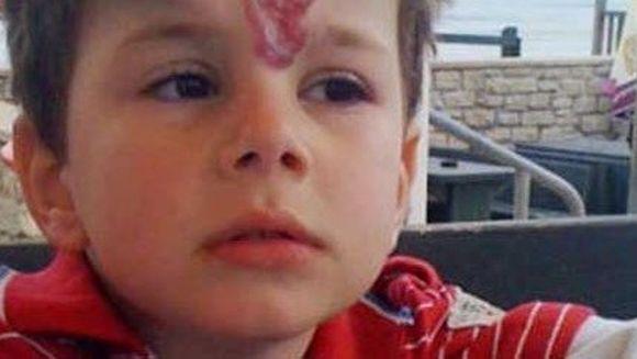 """HORROR. El e baietelul care are COARNE in frunte. Toti s-au CUTREMURAT cand l-au vazut: """"Esti copilul DIAVOLULUI"""""""