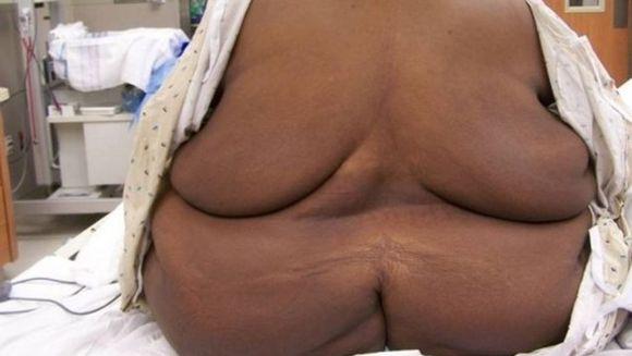 Medicii sunt IN SOC: Acesta este CEL MAI GRAV caz de obezitate din lume! Barbatul care cantareste 610 kilograme. Nu o sa crezi cum arata din fata