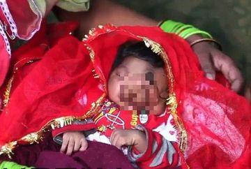 E CUTREMURATOR cu ce s-a nascut aceasta fetita intre ochi! Multi cred ca este un semn de la Dumnezeu