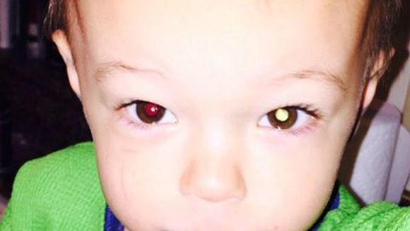 I-a facut o poza cu telefonul baietelului ei si a observat ca avea ceva alb in ochiul stang! La controlul medical a primit o veste trista