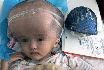 """Povestea """"fetitei cu capul mare"""" din China. Cum arata acum, dupa o operatie nemaiintalnita in lume"""
