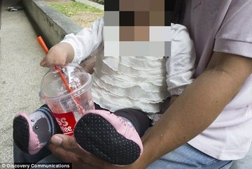 Aceasta fetita s-a nascut cu gura sigilata si a fost hranita pe nas. Cum arata acum, dupa operatia care i-a redat dreptul sa zambeasca
