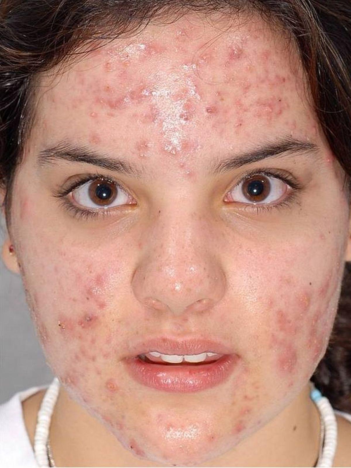 Totul despre acnee: cauze, tratamente eficiente si preventie