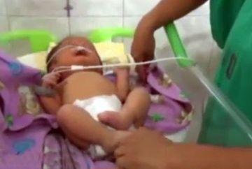 O mama era fericita ca a nascut, dar cand s-a uitat mai bine la fata bebelusului a inceput sa planga de groaza! Ce malformatie avea micutul la chip