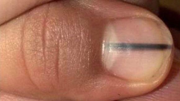 S-a dus la manichiurista si i-a cerut sa o faca cu o culoare inchisa ca sa ii acopere o dunga neagra ce ii aparuse pe o unghie. Cand a vazut-o, femeia i-a spus sa se duca de urgenta la un doctor! Ce a descoperit medicul