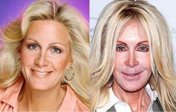 S-AU DESFIGURAT! Cele mai NEREUSITE operatii estetice de la Hollywood GALERIE FOTO