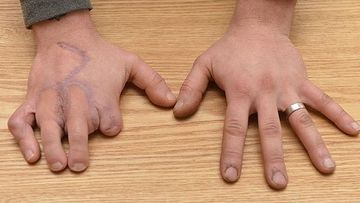ULUITOR: A ramas fara degetele de la mana dreapta intr-un accident TERIBIL, insa le-a inlocuit cu cele de la picioare! Iata cum a fost posibil