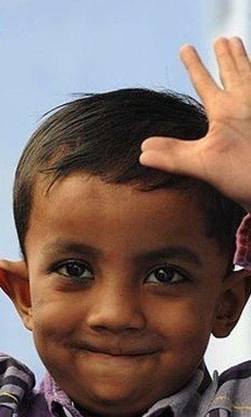 Are doar 4 ani si sufera de doua boli genetice RARE! S-a nascut cu 25 de degete la maini si la picioare