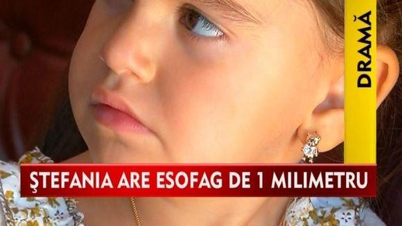 FETITA, care, de cand s-a nascut a cunoscut numai suferinta! Stefania are esofagul de 1mm