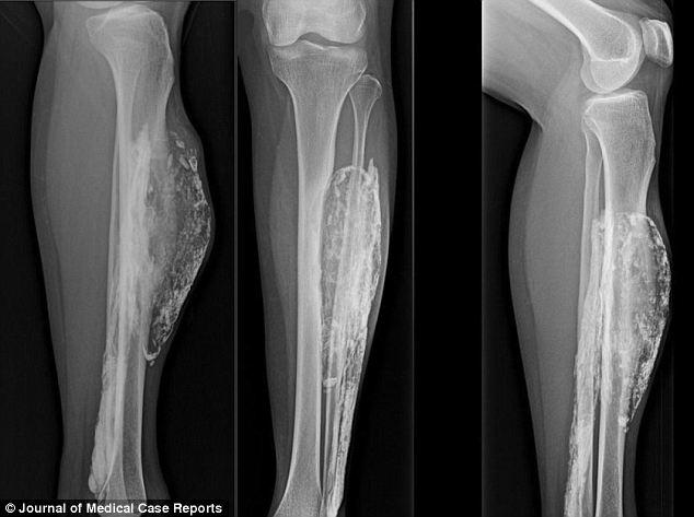 Ce a patit o femei muscata de un sarpe in urma cu 50 de ani! Abia acum a descoperit ce i-a facut sarpele