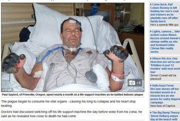 HALUCINANT! Acest barbat a facut CIUMA bubonica dupa ce l-a muscat pisica lui. Uite ce s-a intamplat cu el