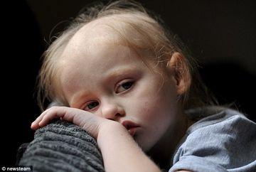SOCANT! A crezut ca fiica ei are o infectie banala la ureche, insa medicii i-au descoperit ceva HALUCINANT