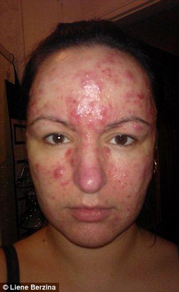 SOCANT! Era pe punctul de a se SINUCIDE din cauza acneei de pe fata, insa a SUFERIT O TRANSFORMARE ULUITOARE datorita unei creme MINUNE