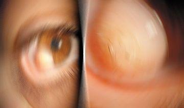 SOCANT! Anomalia care determina cresterea parului pe globul ocular. Afla totul despre o boala TERIBILA! FOTO