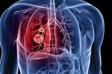 Acestea sunt simptomele cancerului de san! Trebuie sa inveti sa le recunosti!