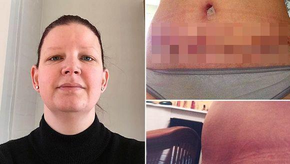A nascut 3 copii prin cezariana si a vrut sa isi opereze pielea lasata. E ingrozitor cum arata acum, dupa ce i-a EXPLODAT cicatricea!