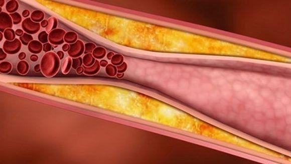 Semne silentioase care te anunta ca ai putea avea arterele infundate! Iata la ce sa fii atenta!