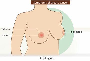 Uite care sunt indiciile care iti spun daca ai cancer la san. Urmareste-le cu atentie, iti pot salva viata!