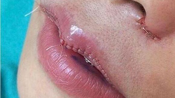 E incredibil ce au ajuns sa isi faca unele femei la buze ca sa arate mai bine! Uite care este cel mai nou trend in domeniul operatiilor estetice