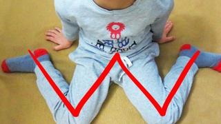 Daca iti vezi copilul stand asa, cu picioarele in forma literei W, opreste-l imediat! Uite cat de periculoasa este aceasta pozitie pentru el!
