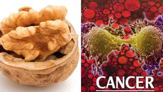 Legatura nestiuta dintre cancer si nuci, s-a descoperit recent! Ce se intampla daca ai mancat acest aliment
