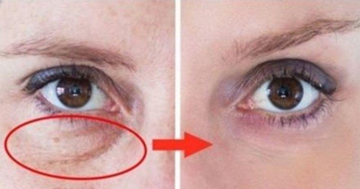 pungile de ochi pierd greutatea)