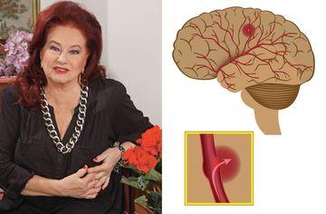 Ce sa faci ca sa previi accidentul vascular cerebral, cauza mortii actritei Stela Popescu