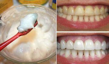 Cum sa iti albesti dintii in doar 4 minute cu ceva ieftin, ce se gaseste in orice magazin! Rezultatele sunt garantate