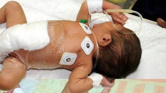 Baietelul cu sase picioare a fost operat cu succes