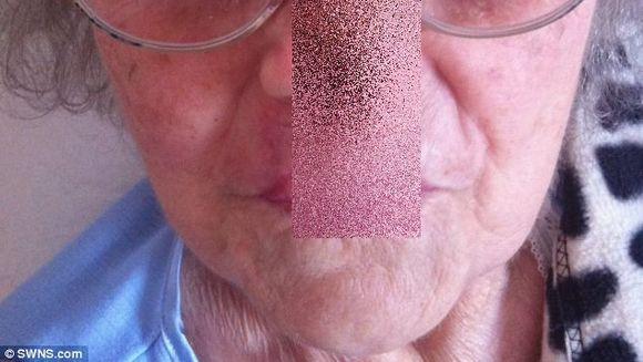 Imagini SOCANTE! A ramas cu o gaura in loc de nas dupa ce a fost desfigurata de medici