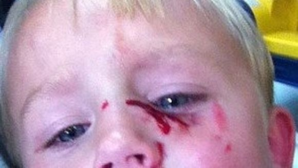 Un baietel in varsta de 4 ani, DESFIGURAT dupa ce a fost atacat pe strada de un pitbull
