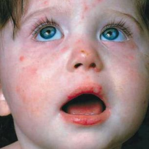 Atentie mamici! Bacteria care produce SCARLATINA este foarte periculoasa. Protejati-va copiii