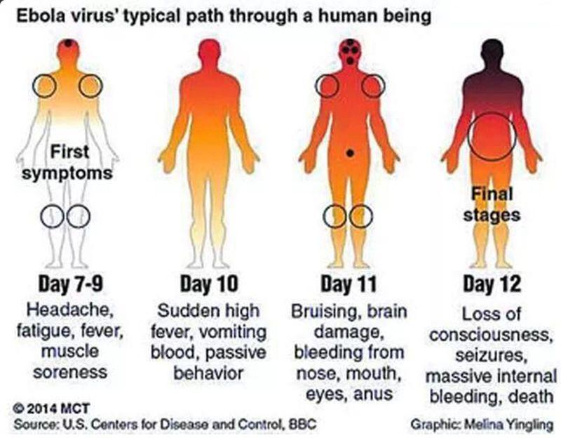ebola simtome